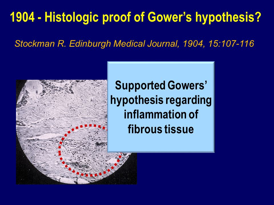 1904 - Histologic proof of Gowers hypothesis? Supported Gowers hypothesis regarding inflammation of fibrous tissue Stockman R. Edinburgh Medical Journ