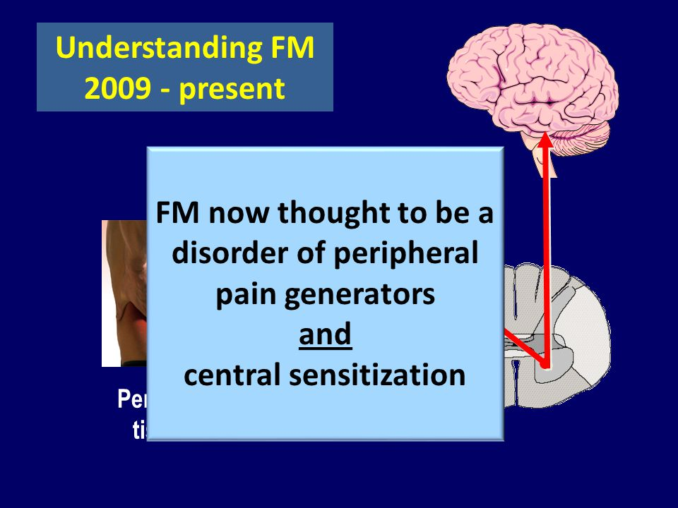 Peripheral tissues Understanding FM 2009 - present FM now thought to be a disorder of peripheral pain generators and central sensitization
