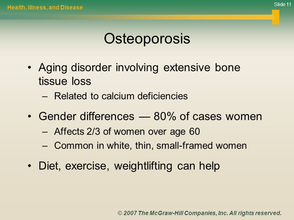 Slide 11 © 2007 The McGraw-Hill Companies, Inc. All rights reserved. Osteoporosis Aging disorder involving extensive bone tissue loss – Related to cal