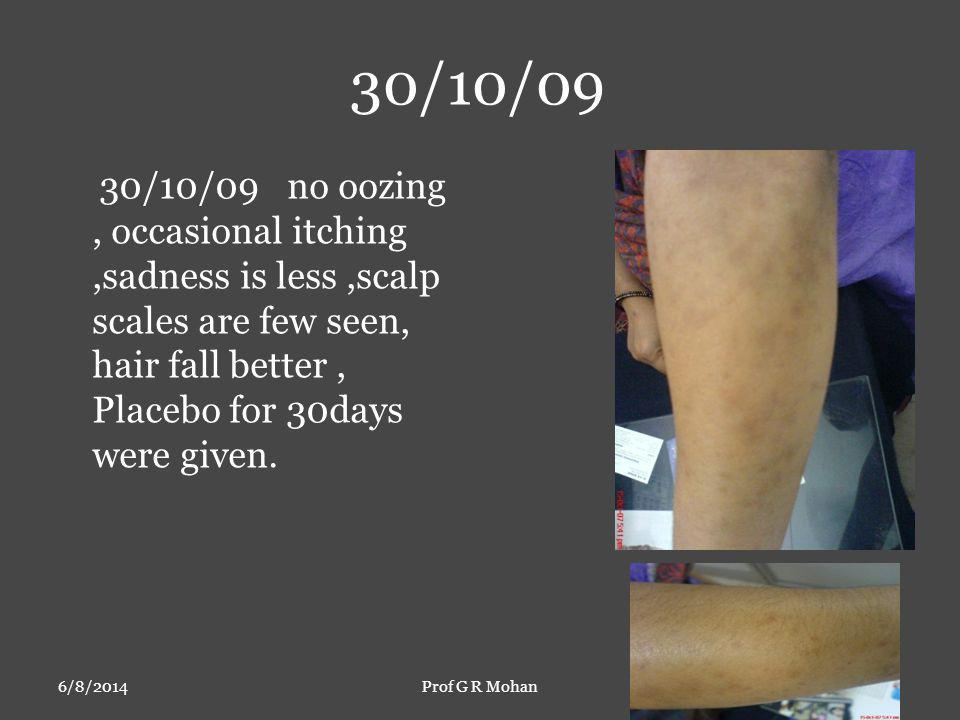 30/10/09 6/8/2014Prof G R Mohan 30/10/09 no oozing, occasional itching,sadness is less,scalp scales are few seen, hair fall better, Placebo for 30days were given.