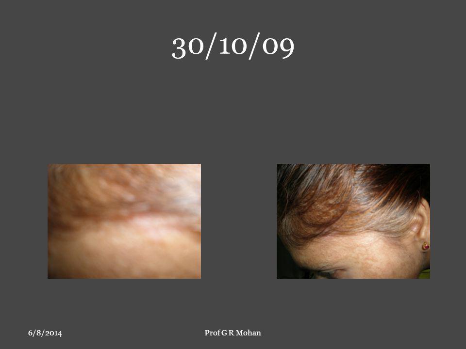 30/10/09 6/8/2014Prof G R Mohan