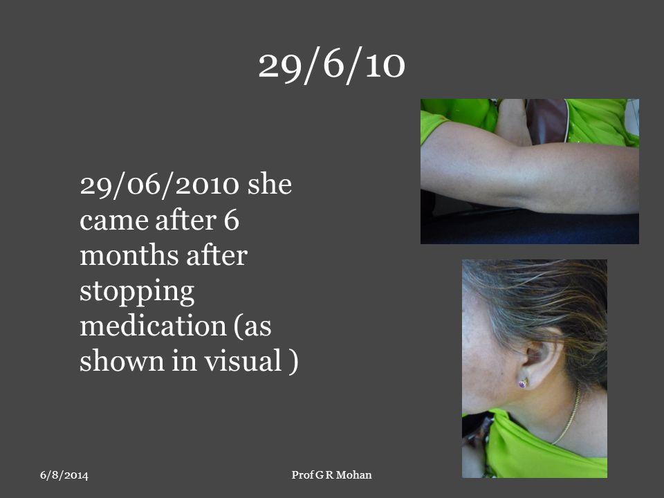 29/6/10 6/8/2014Prof G R Mohan 29/06/2010 she came after 6 months after stopping medication (as shown in visual )