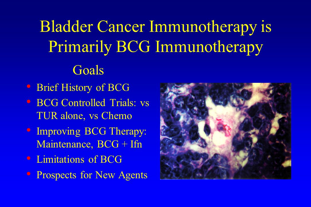 Bladder Cancer Immunotherapy is Primarily BCG Immunotherapy Goals Brief History of BCG BCG Controlled Trials: vs TUR alone, vs Chemo Improving BCG The