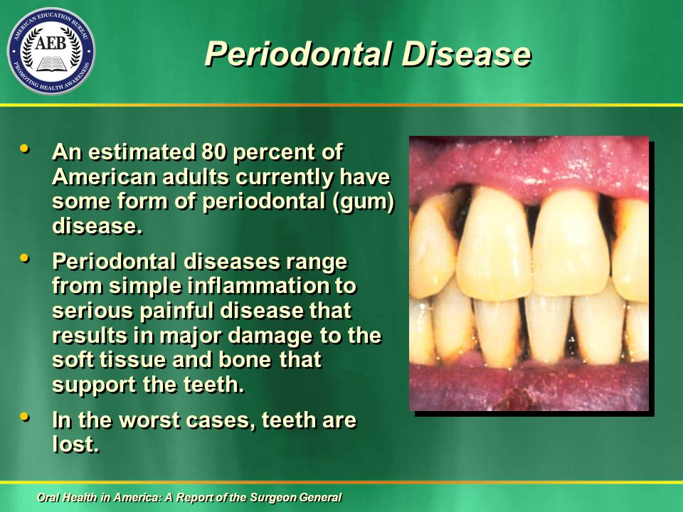 Periodontal Disease An estimated 80 percent of American adults currently have some form of periodontal (gum) disease.