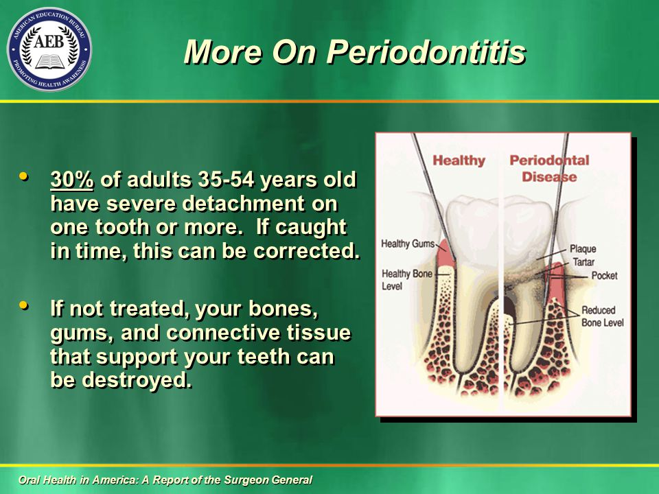 More On Periodontitis 30% of adults 35-54 years old have severe detachment on one tooth or more.