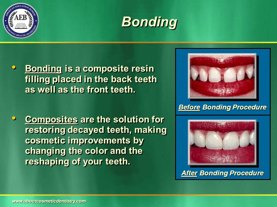 Bonding Bonding is a composite resin filling placed in the back teeth as well as the front teeth. Composites are the solution for restoring decayed te