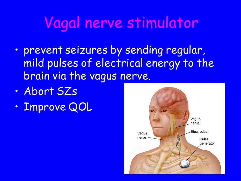 Vagal nerve stimulator prevent seizures by sending regular, mild pulses of electrical energy to the brain via the vagus nerve. Abort SZs Improve QOL