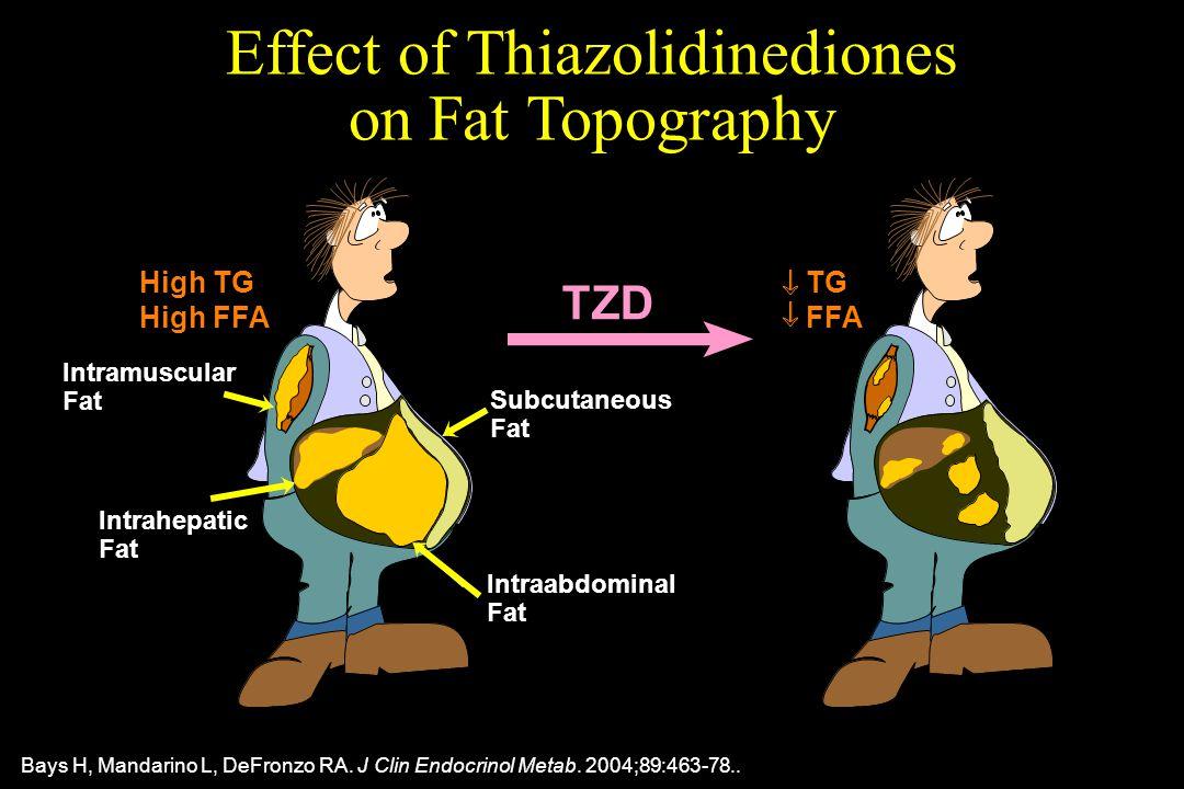 Intramuscular Fat Intrahepatic Fat Intraabdominal Fat Subcutaneous Fat Effect of Thiazolidinediones on Fat Topography High TG High FFA TG FFA TZD Bays