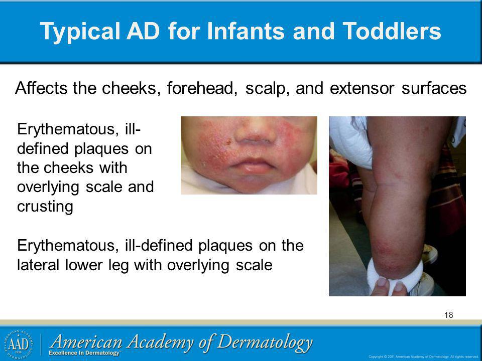 Typical AD for Infants and Toddlers Affects the cheeks, forehead, scalp, and extensor surfaces Erythematous, ill- defined plaques on the cheeks with o