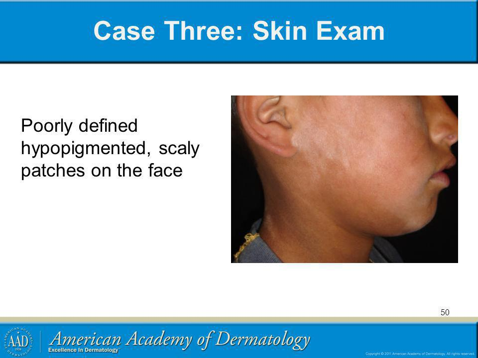 Case Three: Skin Exam Poorly defined hypopigmented, scaly patches on the face 50