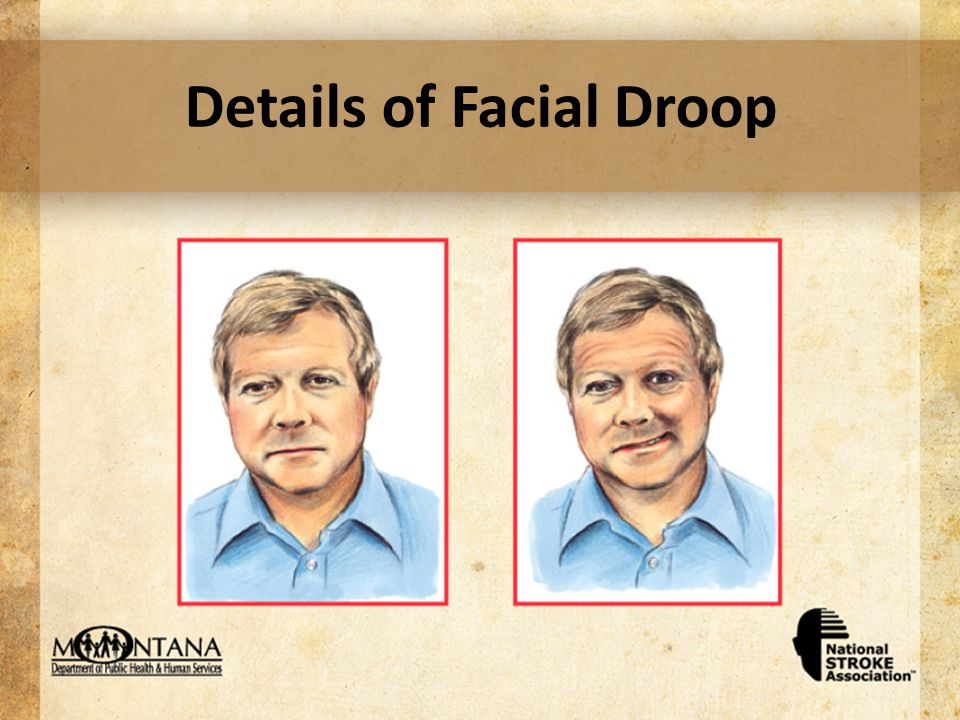 Details of Facial Droop