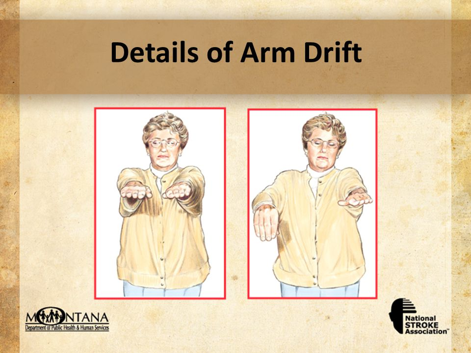 Details of Arm Drift
