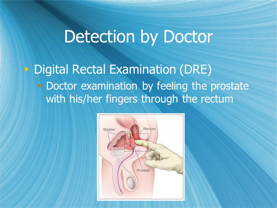 Detection by Doctor Digital Rectal Examination (DRE) Doctor examination by feeling the prostate with his/her fingers through the rectum Digital Rectal