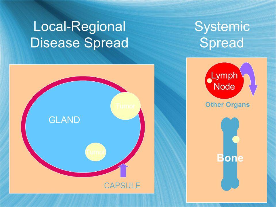 Tumor CAPSULE GLAND Bone Lymph Node Other Organs Local-Regional Disease Spread Systemic Spread