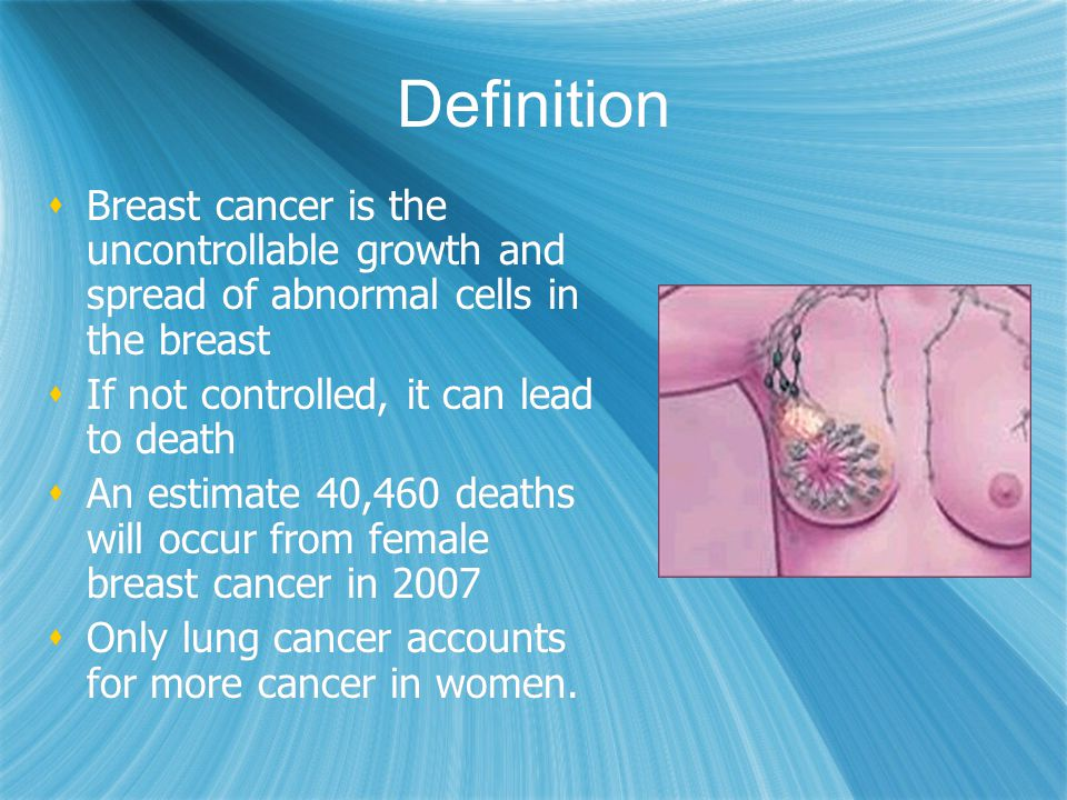 Definition Breast cancer is the uncontrollable growth and spread of abnormal cells in the breast If not controlled, it can lead to death An estimate 4