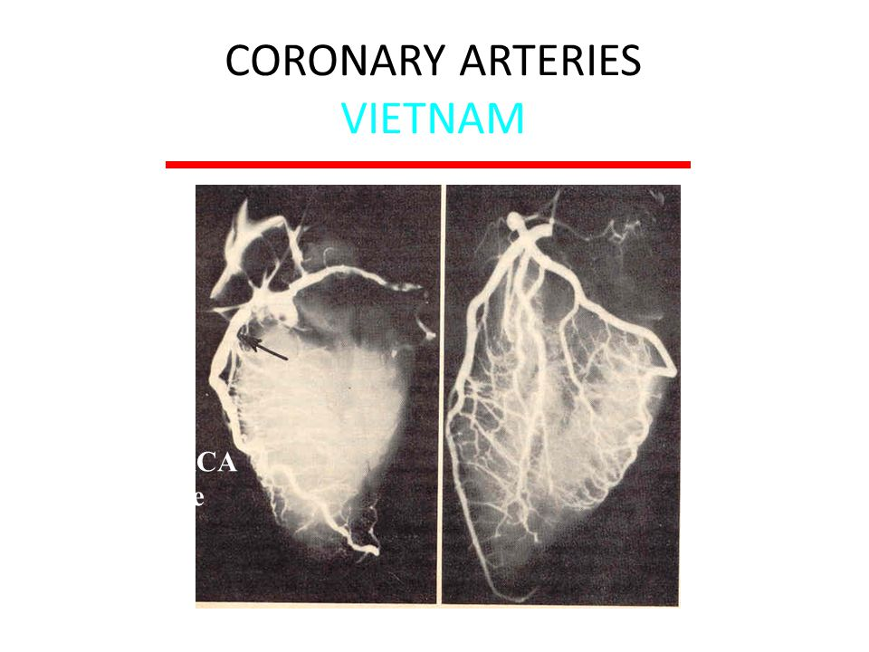 CORONARY ARTERIES VIETNAM McNamara et al: JAMA 216:1185, 1971 22 yo 50% RCA 3+ gross disease