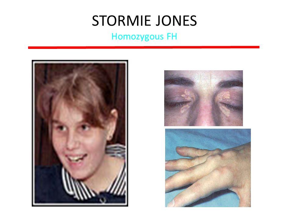 STORMIE JONES Homozygous FH
