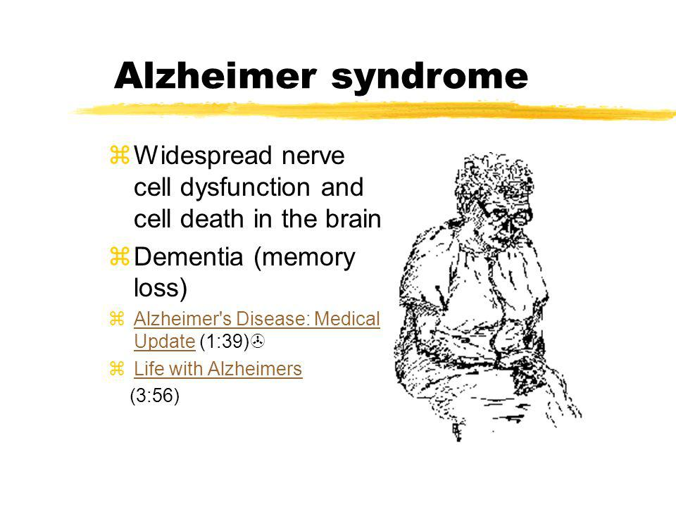 Alzheimer syndrome zWidespread nerve cell dysfunction and cell death in the brain zDementia (memory loss) zAlzheimer's Disease: Medical Update (1:39)