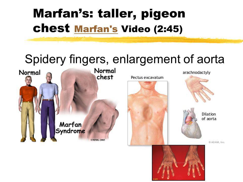 Marfans: taller, pigeon chest Marfan's Video (2:45) Marfan's Spidery fingers, enlargement of aorta