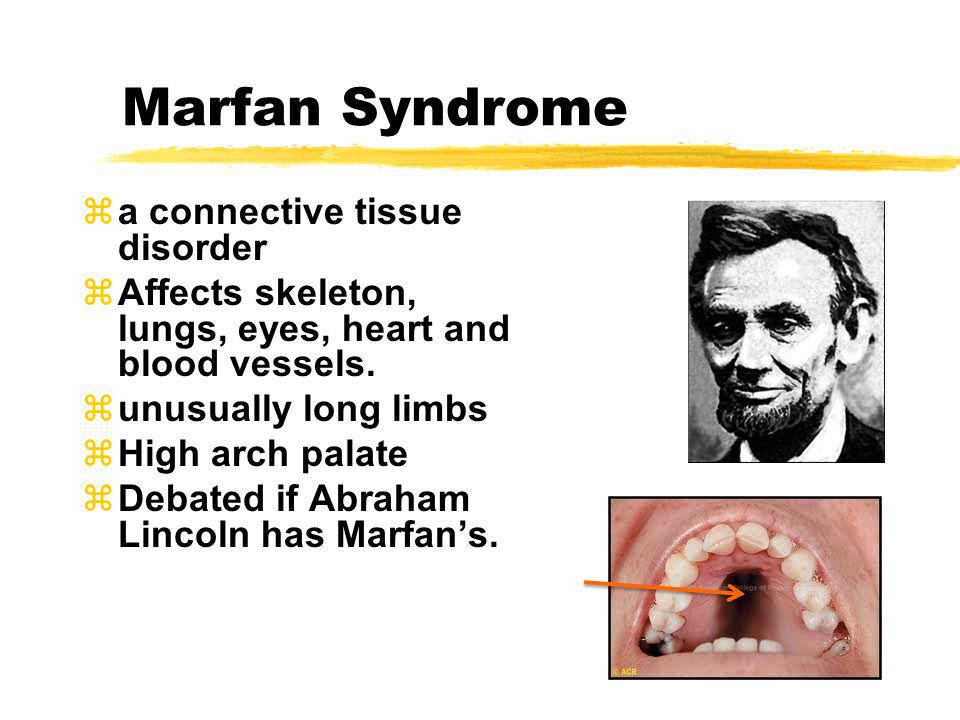 Marfan Syndrome za connective tissue disorder zAffects skeleton, lungs, eyes, heart and blood vessels. zunusually long limbs zHigh arch palate zDebate