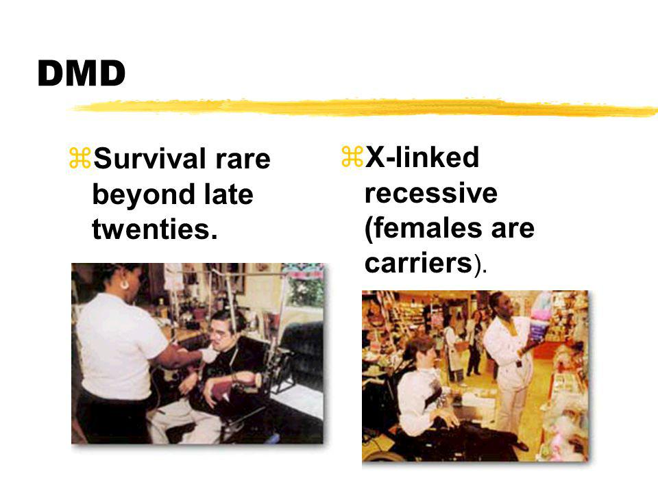 DMD zSurvival rare beyond late twenties. zX-linked recessive (females are carriers ).