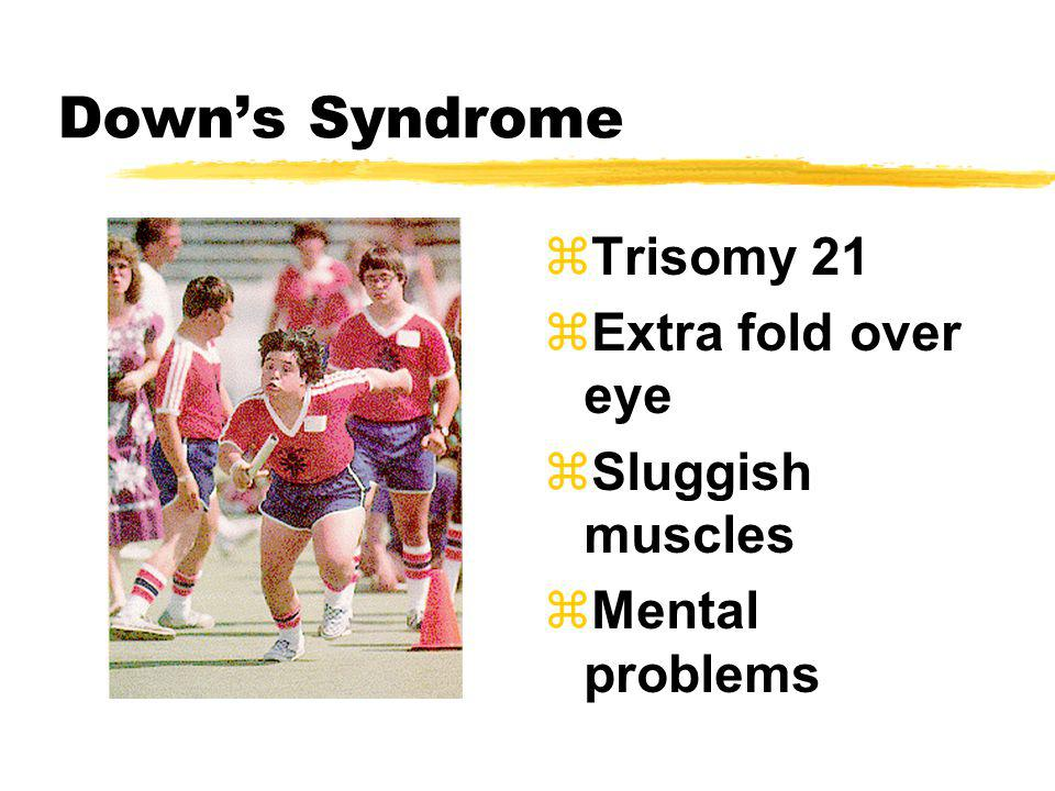 Downs Syndrome zTrisomy 21 zExtra fold over eye zSluggish muscles zMental problems