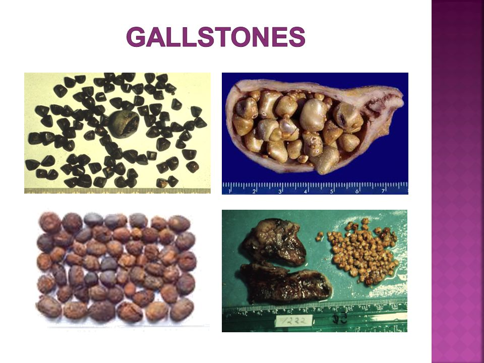 Gallstones that originate in the gallbladder and pass through the cystic duct into the common duct.