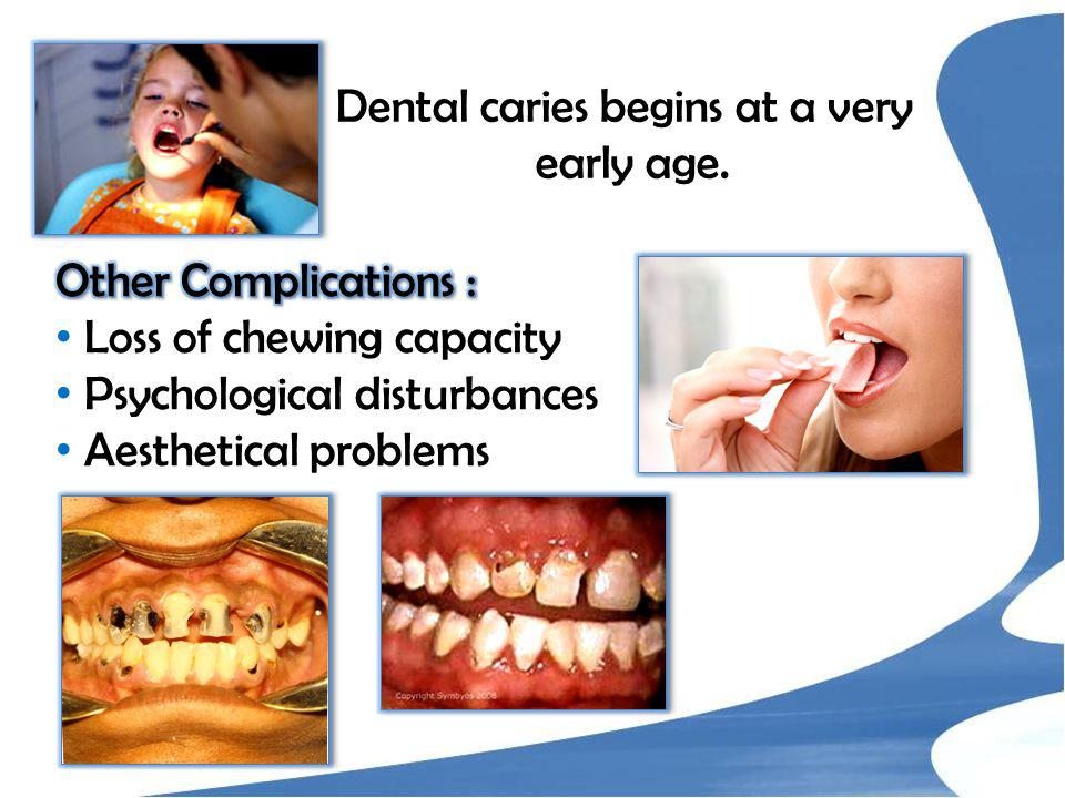 Dental caries begins at a very early age.