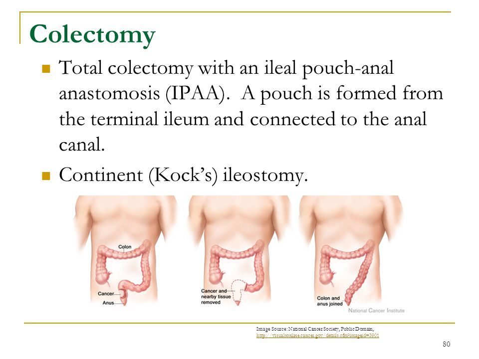 80 Colectomy Total colectomy with an ileal pouch-anal anastomosis (IPAA). A pouch is formed from the terminal ileum and connected to the anal canal. C