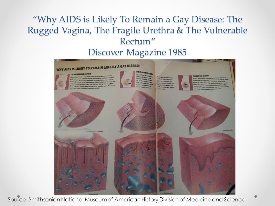 Why AIDS is Likely To Remain a Gay Disease: The Rugged Vagina, The Fragile Urethra & The Vulnerable Rectum Discover Magazine 1985 Source: Smithsonian National Museum of American History Division of Medicine and Science