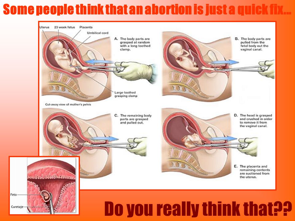 Some people think that an abortion is just a quick fix... Do you really think that??