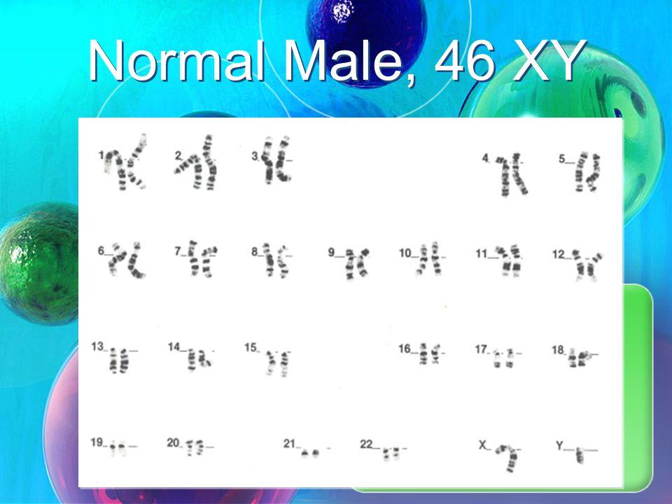 Normal Female, 46, XX