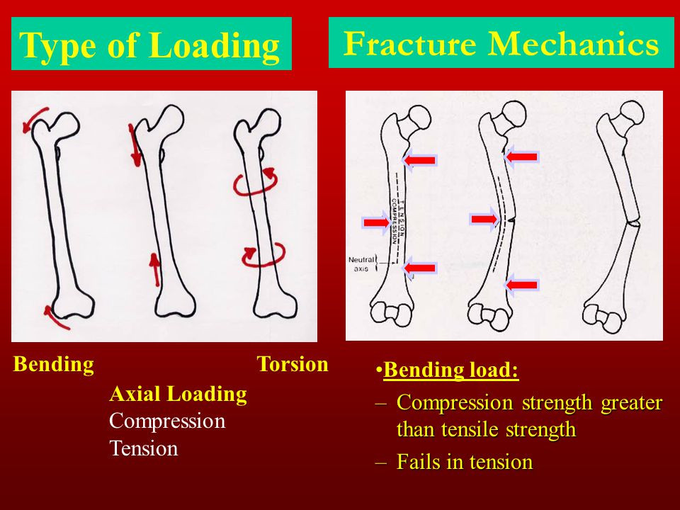 Bending Type of Loading Torsion Axial Loading Compression Tension Fracture Mechanics Bending load: –Compression strength greater than tensile strength
