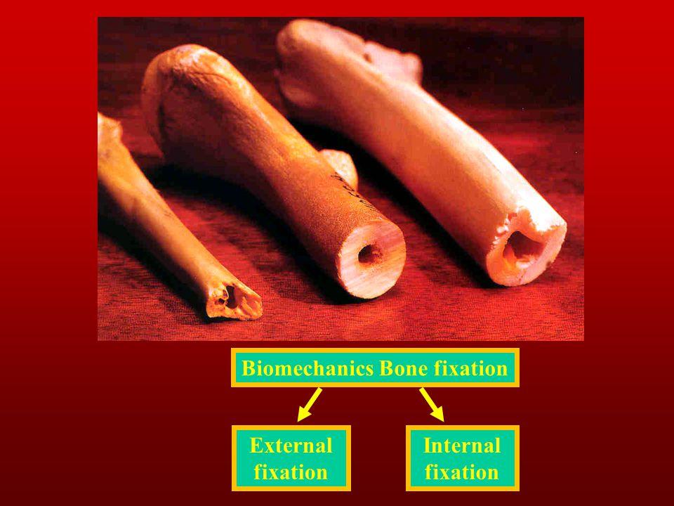 Biomechanics Bone fixation External fixation Internal fixation