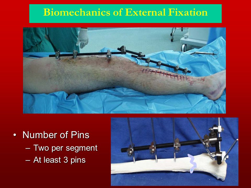 Biomechanics of External Fixation Number of PinsNumber of Pins –Two per segment –At least 3 pins