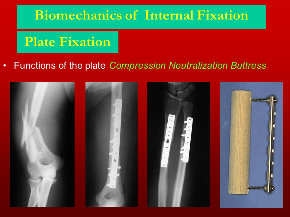Plate Fixation Functions of the plate Compression Neutralization Buttress Biomechanics of Internal Fixation
