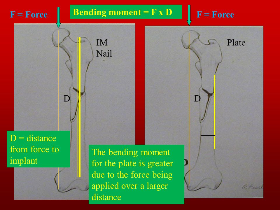 Bending moment = F x D F = Force D D = distance from force to implant F = Force D The bending moment for the plate is greater due to the force being a
