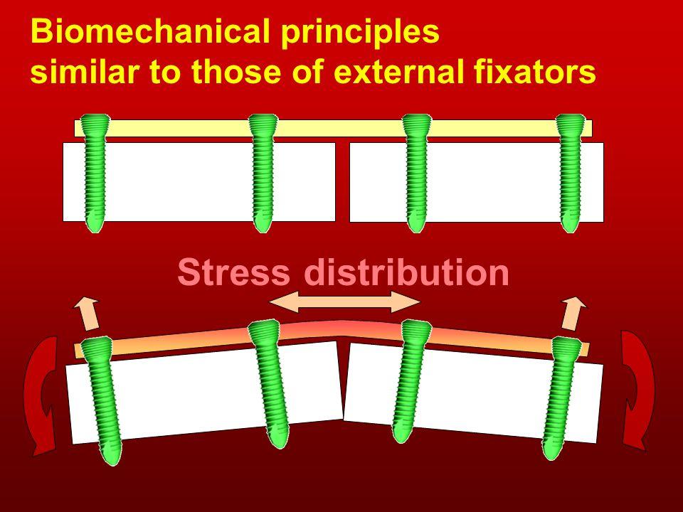 Biomechanical principles similar to those of external fixators Stress distribution