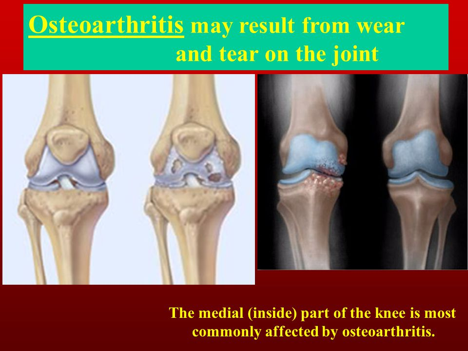 Osteoarthritis may result from wear and tear on the joint The medial (inside) part of the knee is most commonly affected by osteoarthritis.