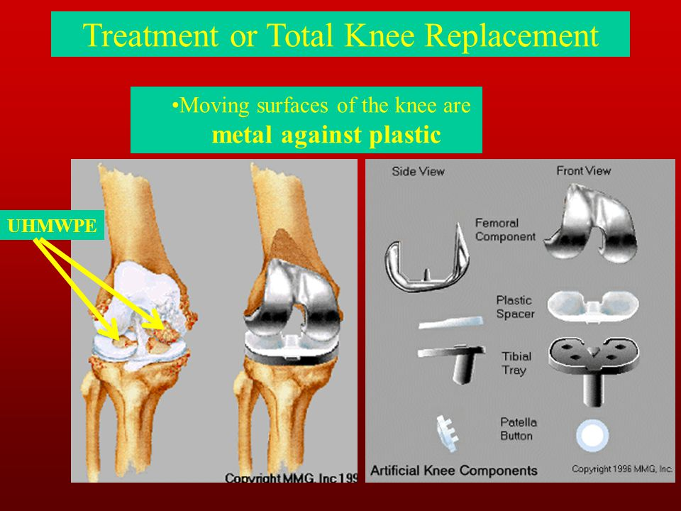 Moving surfaces of the knee are metal against plastic Treatment or Total Knee Replacement UHMWPE