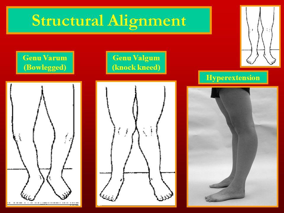 Structural Alignment Hyperextension Genu Valgum (knock kneed) Genu Varum (Bowlegged)