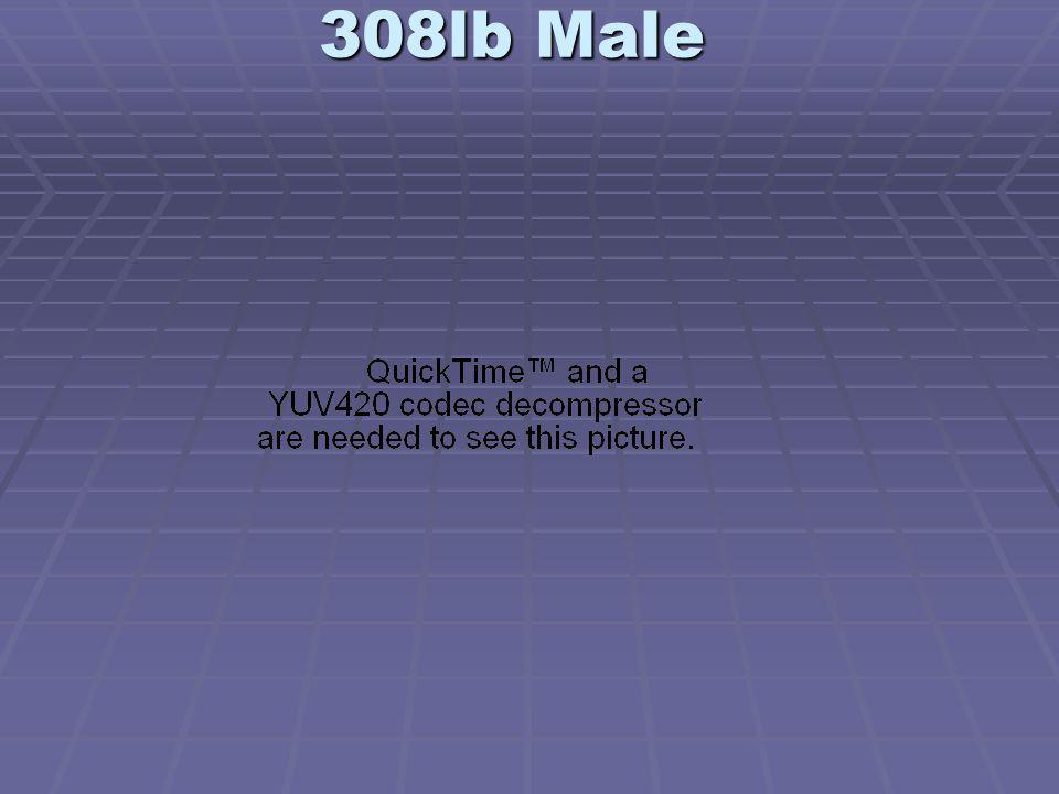 308lb Male