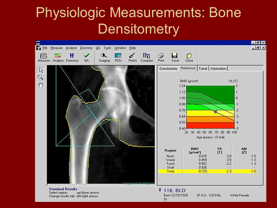 Physiologic Measurements: Bone Densitometry
