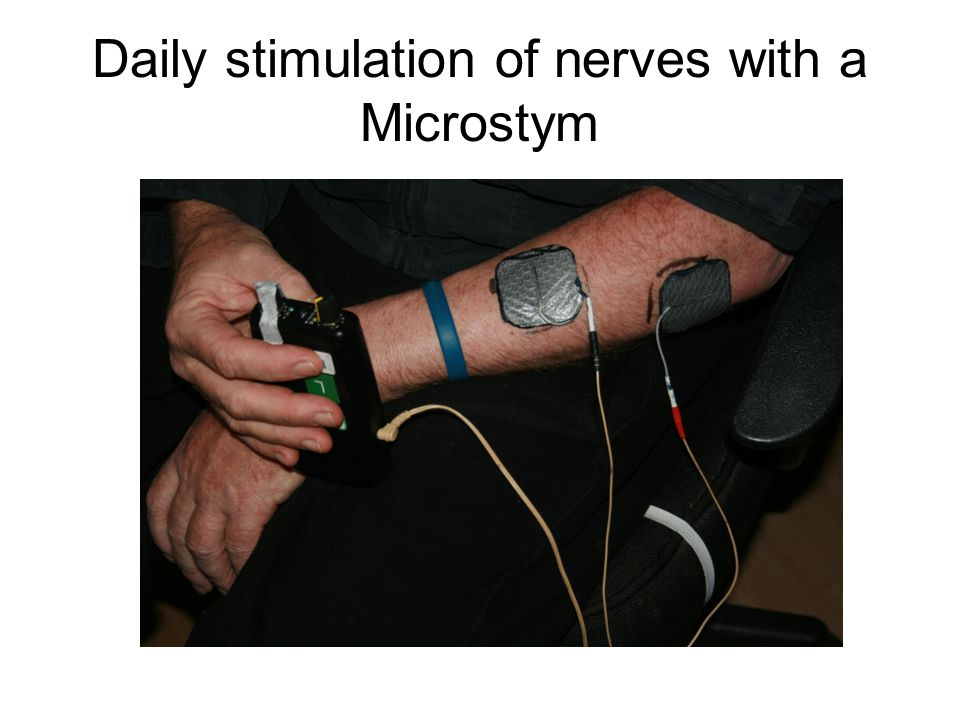 Daily stimulation of nerves with a Microstym