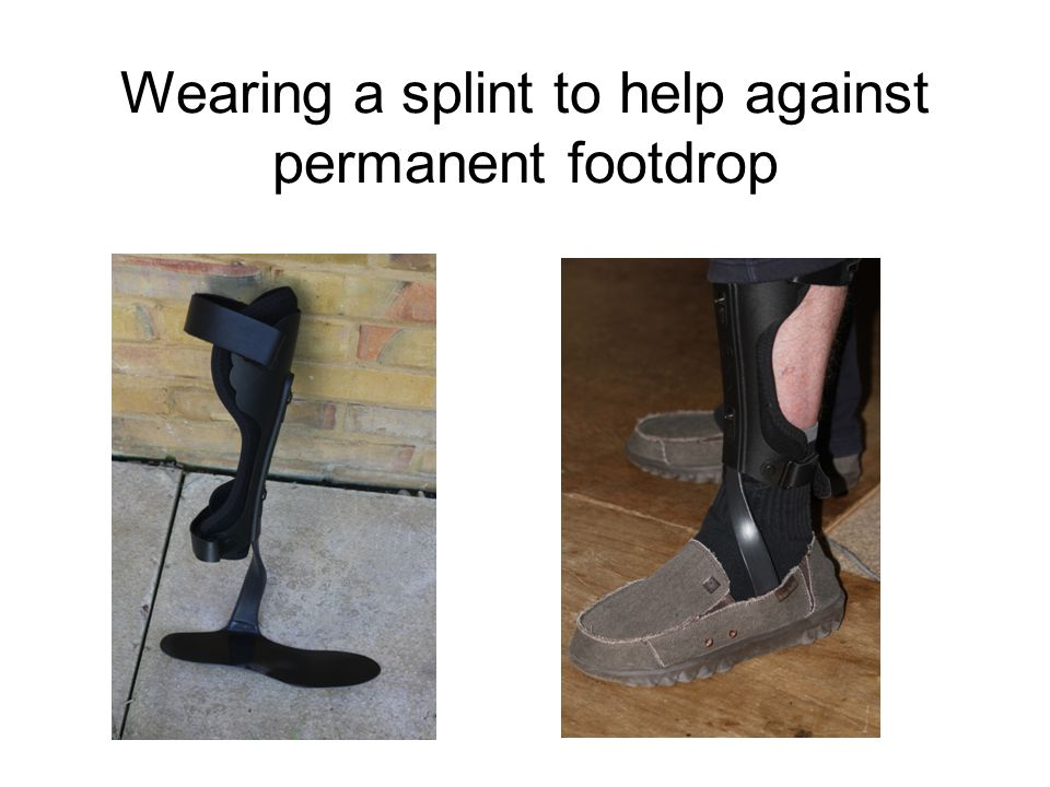 Wearing a splint to help against permanent footdrop