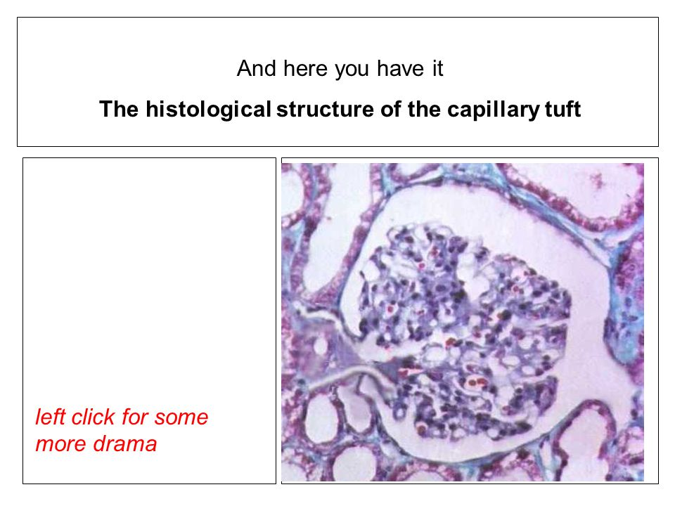 And here you have it The histological structure of the capillary tuft left click for some more drama