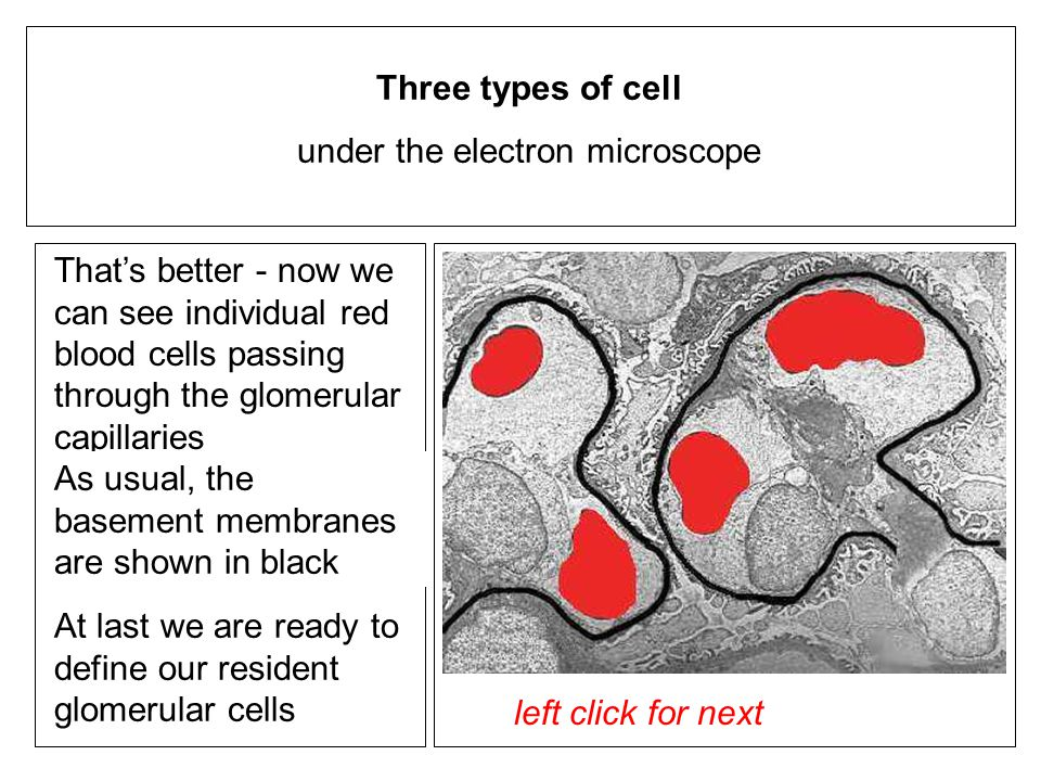 left click for next Thats better - now we can see individual red blood cells passing through the glomerular capillaries Three types of cell under the electron microscope left click to proceed As usual, the basement membranes are shown in black At last we are ready to define our resident glomerular cells