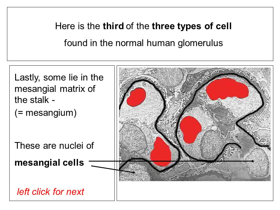 left click for next Lastly, some lie in the mesangial matrix of the stalk - (= mesangium) These are nuclei of mesangial cells Here is the third of the three types of cell found in the normal human glomerulus