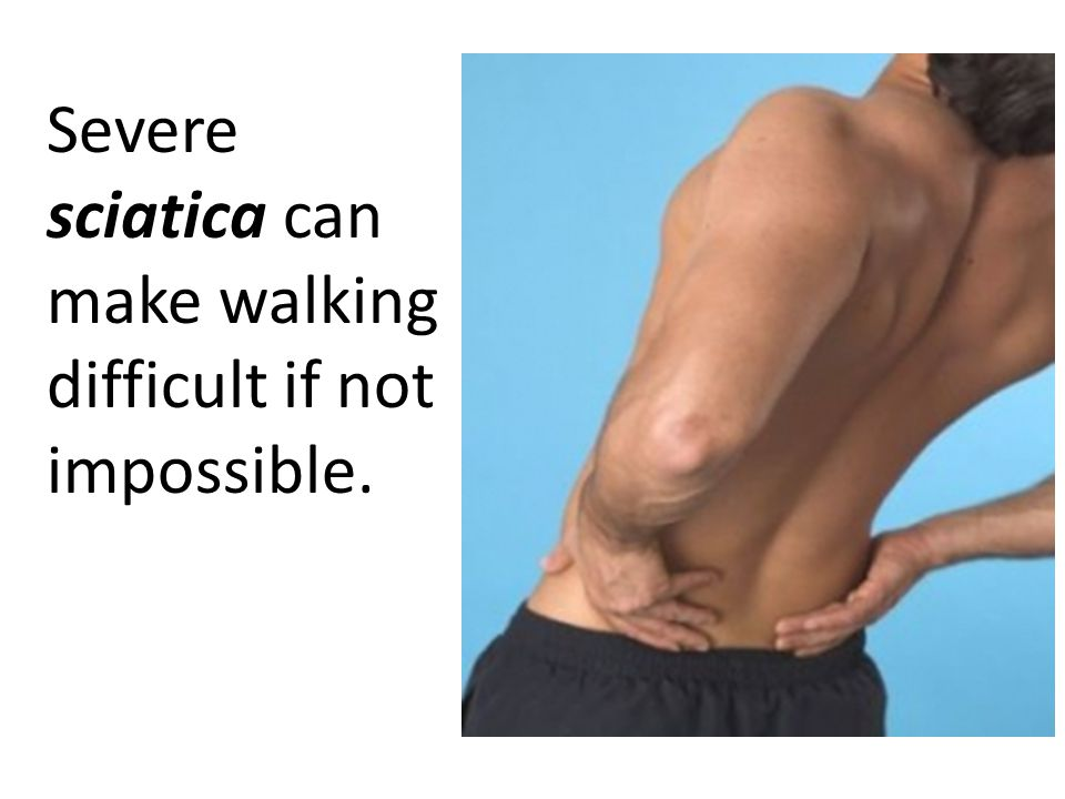Severe sciatica can make walking difficult if not impossible.