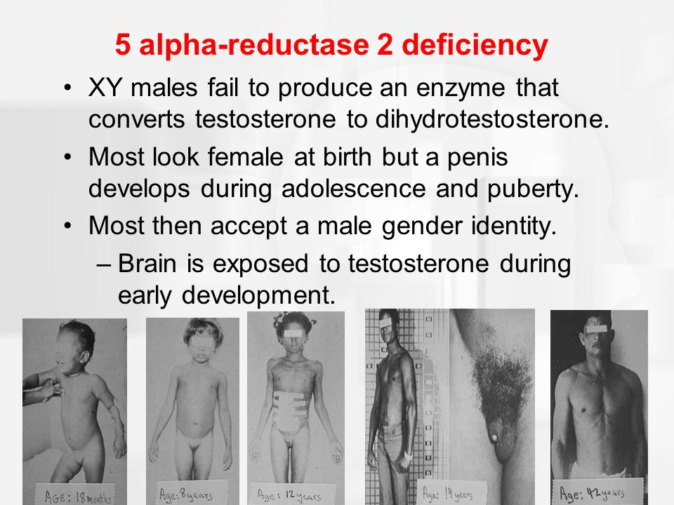 5alphareductase type 2 deficiency 5ARD is an autosomal recessive sexlimited condition resulting in the inability to convert testosterone to the more